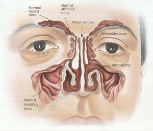 Procedure For Nasal Polyps Operation Sinuses